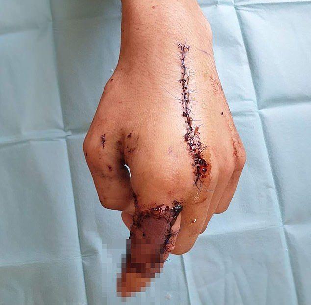 【不運】金属探知機で宝探しをしていたフランス人男性、第一次大戦中の爆弾で人差し指を吹き飛ばす!!(画像)・3枚目