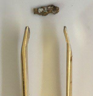 【不運】金属探知機で宝探しをしていたフランス人男性、第一次大戦中の爆弾で人差し指を吹き飛ばす!!(画像)・4枚目