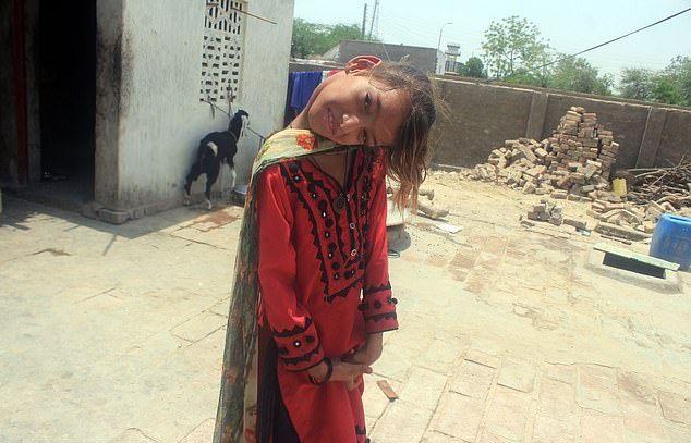 【衝撃】赤ん坊の頃転倒して首が90度曲がったまま成長したパキスタンの美少女、怖過ぎる・・・・・(画像、動画)・2枚目