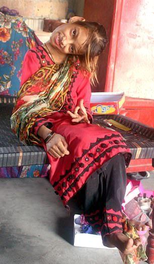【衝撃】赤ん坊の頃転倒して首が90度曲がったまま成長したパキスタンの美少女、怖過ぎる・・・・・(画像、動画)・3枚目