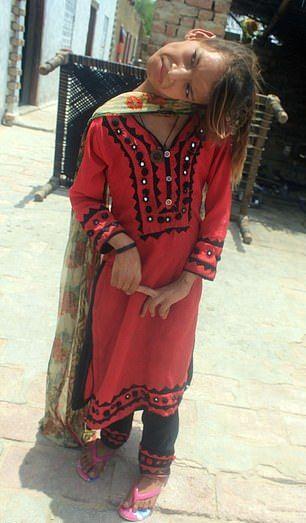 【衝撃】赤ん坊の頃転倒して首が90度曲がったまま成長したパキスタンの美少女、怖過ぎる・・・・・(画像、動画)・4枚目