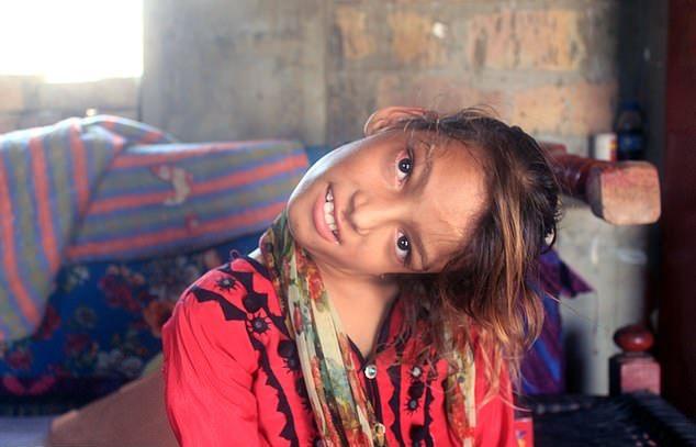 【衝撃】赤ん坊の頃転倒して首が90度曲がったまま成長したパキスタンの美少女、怖過ぎる・・・・・(画像、動画)・5枚目