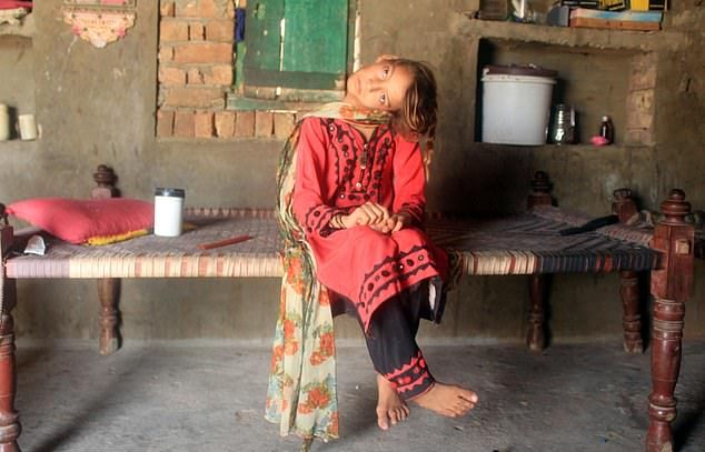 【衝撃】赤ん坊の頃転倒して首が90度曲がったまま成長したパキスタンの美少女、怖過ぎる・・・・・(画像、動画)・7枚目