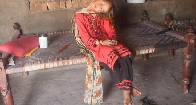 【衝撃】赤ん坊の頃転倒して首が90度曲がったまま成長したパキスタンの美少女、怖過ぎる・・・・・(画像、動画)・10枚目