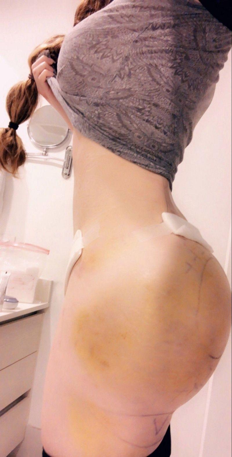 【おっぱいモンスター】アメリカ人女性、豊胸と整形手術に19万ドルかけて見事モンスターになる!!・7枚目