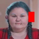 【ヤバ過ぎ】ピアスの穴がキッカケで感染症にかかった女性、耳がとんでもない状態になる!!(画像)