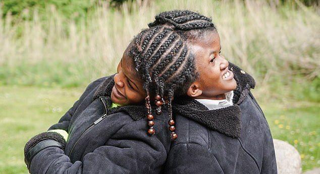 【分離不可能】医者も分離手術を諦めた南米の結合双生児、無事に18歳を迎える・・・・。・4枚目