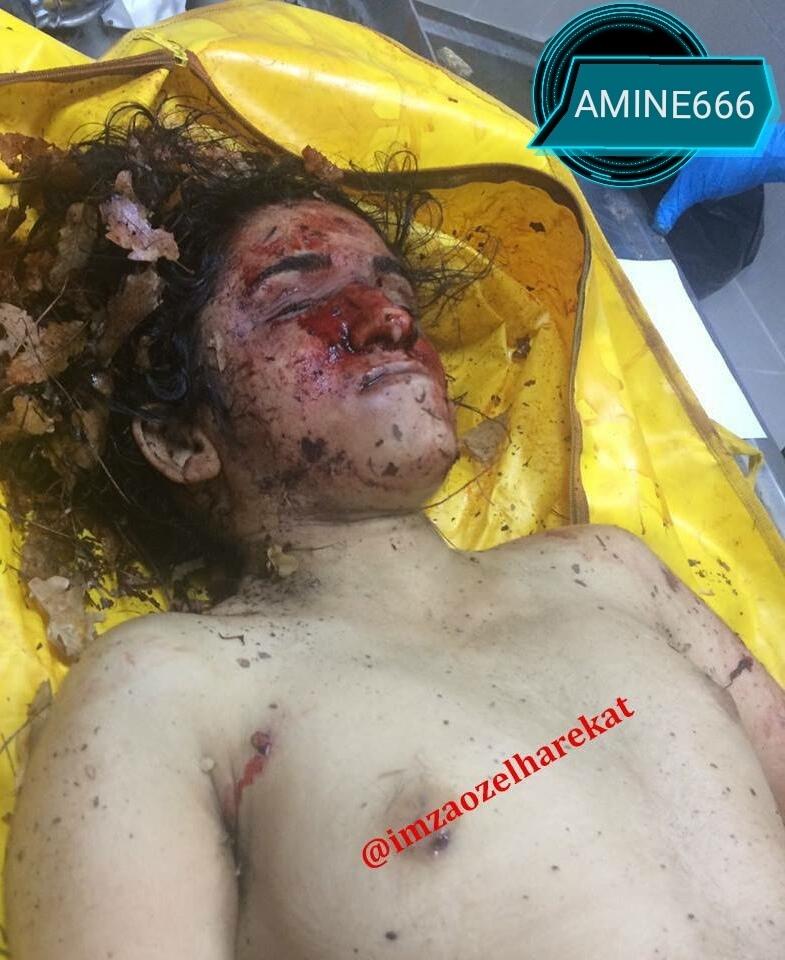 【女性兵士レイプ】ISISに生きたまま捕らえられたクルド人女性兵士、漏れなくレイプされ殺される・・・・・(画像)・6枚目