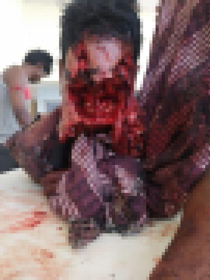 【超閲覧注意】インドで野生の熊に襲われた男性、顔面をグチャグチャにされるも辛うじて生還・・・・・(画像)・1枚目
