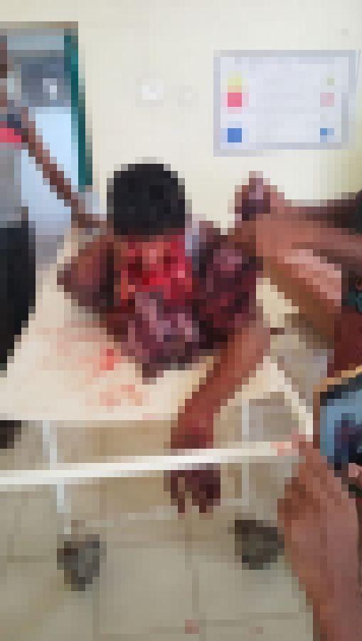 【超閲覧注意】インドで野生の熊に襲われた男性、顔面をグチャグチャにされるも辛うじて生還・・・・・(画像)・2枚目