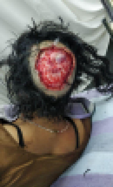 【恐怖】回転中の機械に長い髪が巻き込まれたインド人女性、頭皮ごと引き剥がされる!!(画像)・1枚目