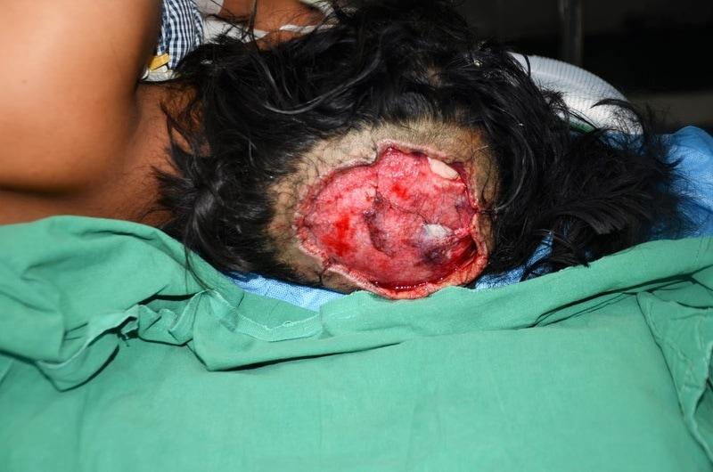 【恐怖】回転中の機械に長い髪が巻き込まれたインド人女性、頭皮ごと引き剥がされる!!(画像)・2枚目
