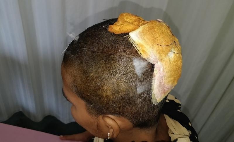 【恐怖】回転中の機械に長い髪が巻き込まれたインド人女性、頭皮ごと引き剥がされる!!(画像)・4枚目