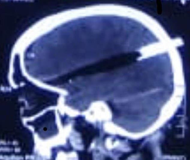【怖過ぎ】躓いて転倒し頭蓋骨をストーブの蓋が貫通したインド女性、無事手術を受け生還する!!・1枚目