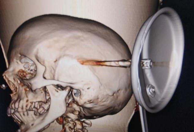 【怖過ぎ】躓いて転倒し頭蓋骨をストーブの蓋が貫通したインド女性、無事手術を受け生還する!!・2枚目