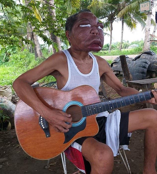 【恐怖】フィリピン・レイテ島の56歳男性、謎の奇病により顔が3倍に膨れ上がる!!(画像)・1枚目