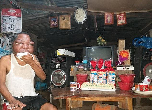 【恐怖】フィリピン・レイテ島の56歳男性、謎の奇病により顔が3倍に膨れ上がる!!(画像)・3枚目