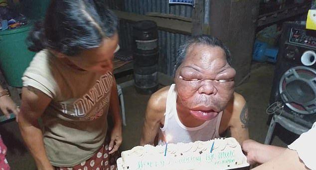 【恐怖】フィリピン・レイテ島の56歳男性、謎の奇病により顔が3倍に膨れ上がる!!(画像)・4枚目