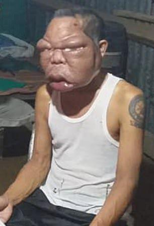 【恐怖】フィリピン・レイテ島の56歳男性、謎の奇病により顔が3倍に膨れ上がる!!(画像)・6枚目