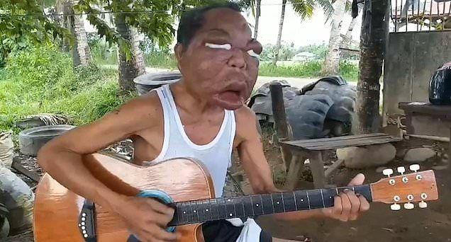 【恐怖】フィリピン・レイテ島の56歳男性、謎の奇病により顔が3倍に膨れ上がる!!(画像)・7枚目