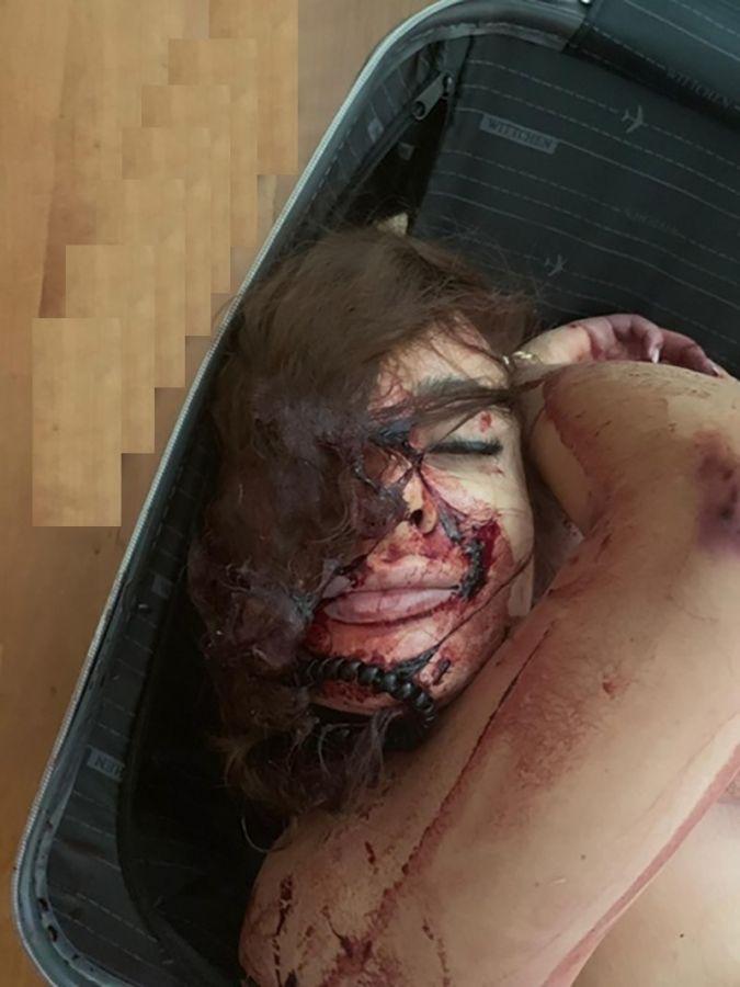 【無残】モスクワの美人看護学校生、アパートの一室からスーツケースに詰め込まれた状態で発見される!!(画像)・2枚目