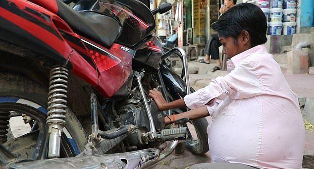 【奇病】インド自転車工場で働く少年、病気で妊婦以上のボテ腹に成長してしまう・・・・・(画像)・2枚目