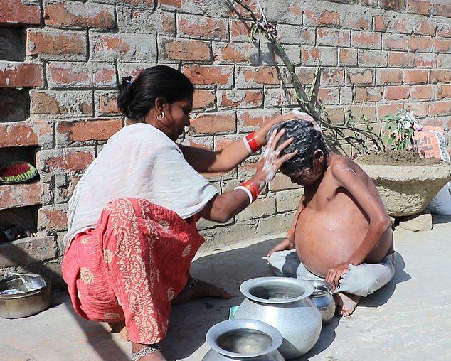【奇病】インド自転車工場で働く少年、病気で妊婦以上のボテ腹に成長してしまう・・・・・(画像)・6枚目