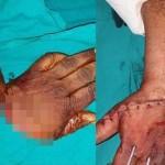 【リアルBJ】路上喧嘩で左手をほぼ切り落とされたインド人男性、凄腕外科医に完璧に修復される!!(画像)