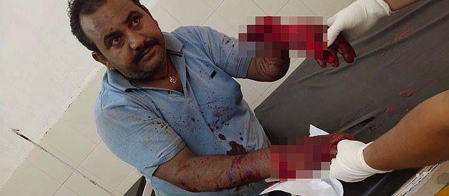 【リアルBJ】路上喧嘩で左手をほぼ切り落とされたインド人男性、凄腕外科医に完璧に修復される!!(画像)・2枚目