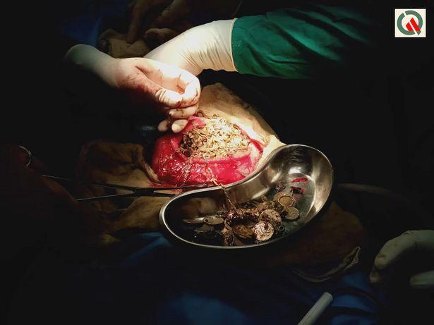 【凄過ぎ】インドの26歳女性、宝石店から合計1.5㎏のアクセサリー類を胃の中に飲み込んで盗む!!(画像)・1枚目