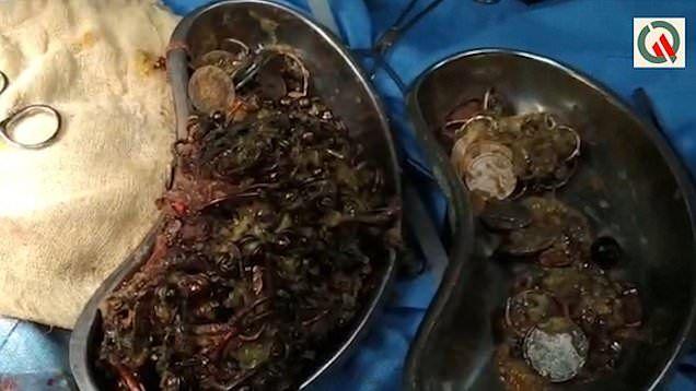【凄過ぎ】インドの26歳女性、宝石店から合計1.5㎏のアクセサリー類を胃の中に飲み込んで盗む!!(画像)・5枚目