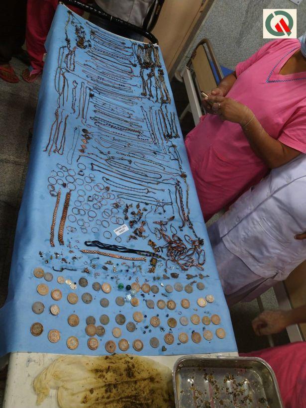 【凄過ぎ】インドの26歳女性、宝石店から合計1.5㎏のアクセサリー類を胃の中に飲み込んで盗む!!(画像)・6枚目