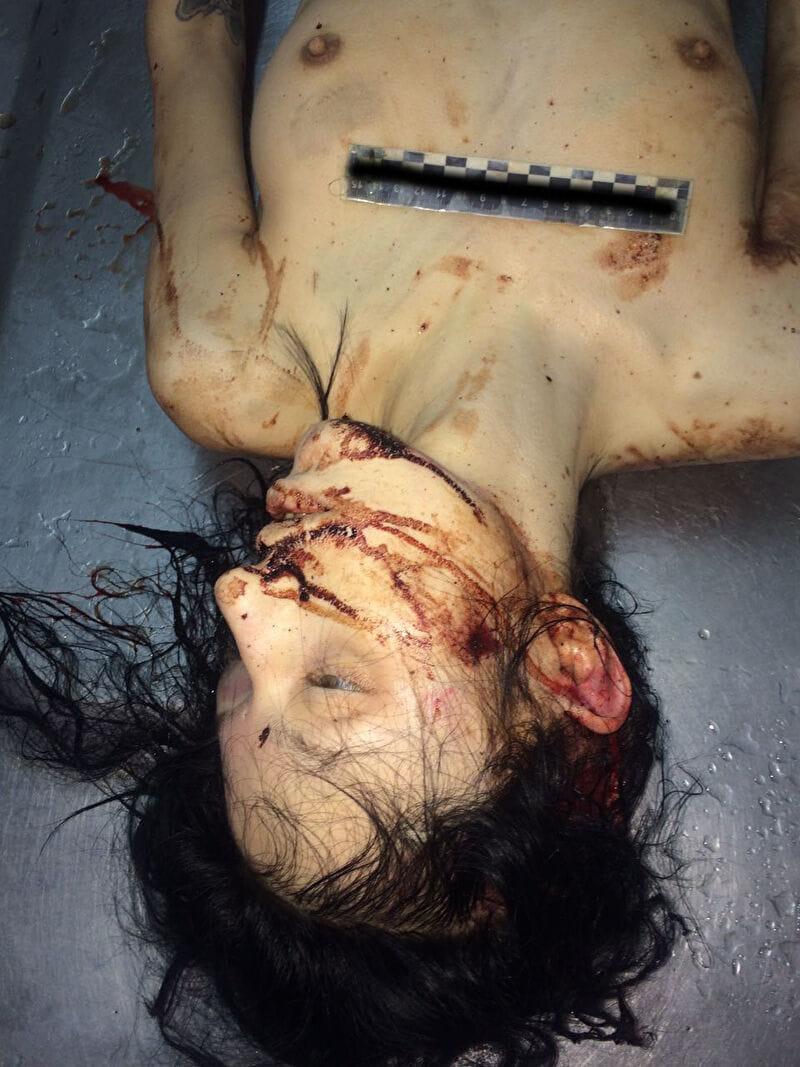 【遺体晒し】ロシアの飛び降り自殺女性、何故か飛び降り現場の写真とともに裸の検死画像まで晒される・・・・(画像)・11枚目