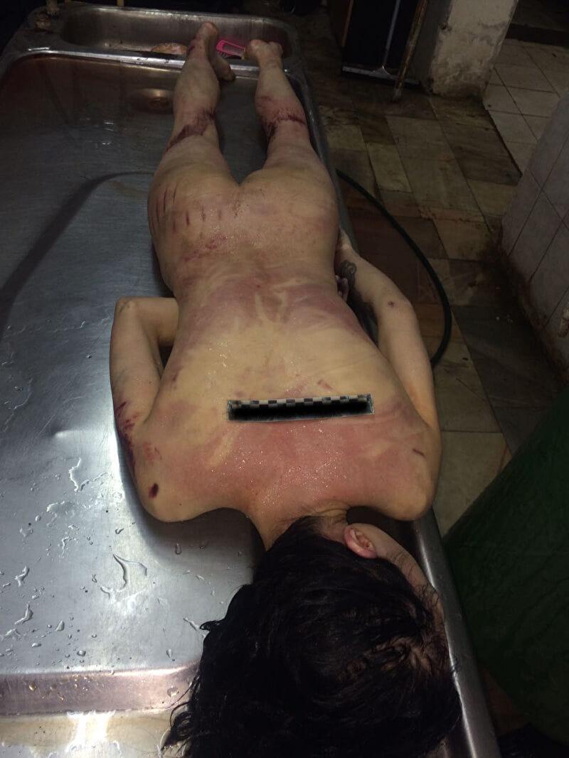 【遺体晒し】ロシアの飛び降り自殺女性、何故か飛び降り現場の写真とともに裸の検死画像まで晒される・・・・(画像)・12枚目