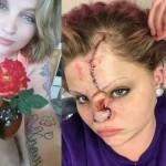 【悲惨】友人の飼い犬ピットブルに顔面を噛まれた美人ネキ、顔が崩壊してしまう・・・・(画像)