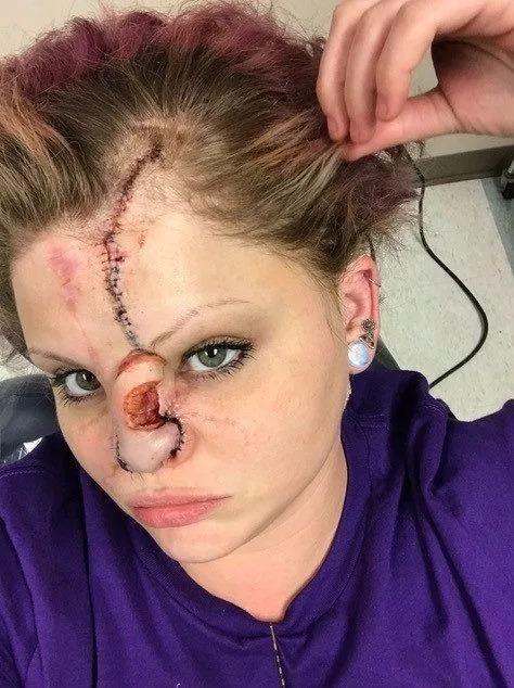 【悲惨】友人の飼い犬ピットブルに顔面を噛まれた美人ネキ、顔が崩壊してしまう・・・・(画像)・5枚目