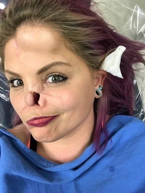 【悲惨】友人の飼い犬ピットブルに顔面を噛まれた美人ネキ、顔が崩壊してしまう・・・・(画像)・6枚目