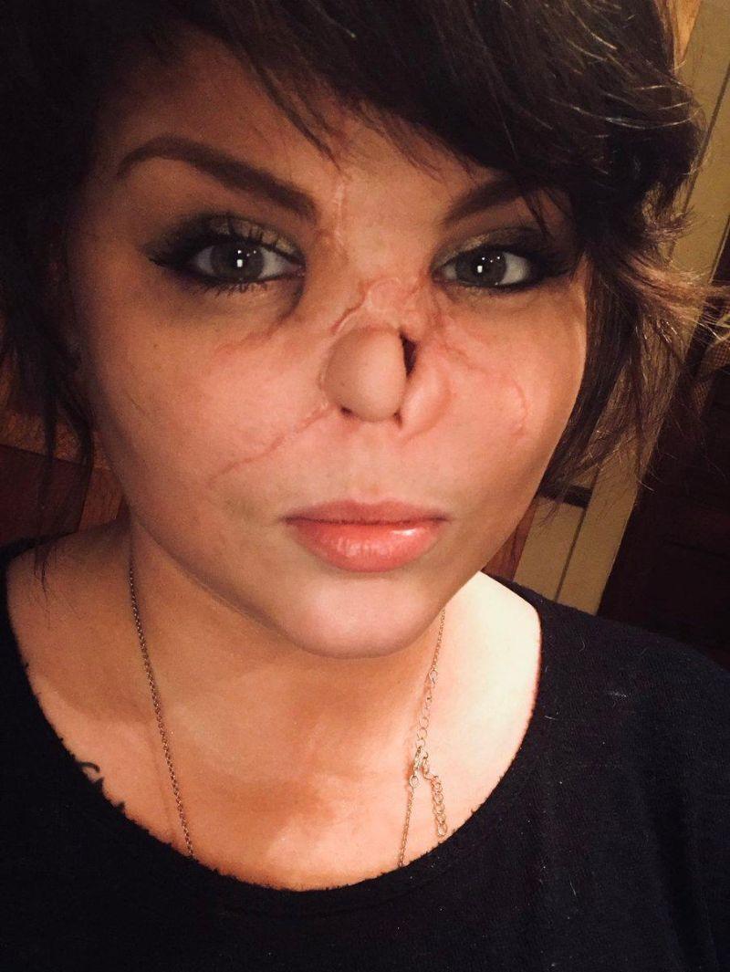 【悲惨】友人の飼い犬ピットブルに顔面を噛まれた美人ネキ、顔が崩壊してしまう・・・・(画像)・7枚目