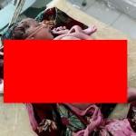 【神の化身】インドで生まれた結合双生児、4本の腕と3本の足を持って生まれてくる!!(画像)