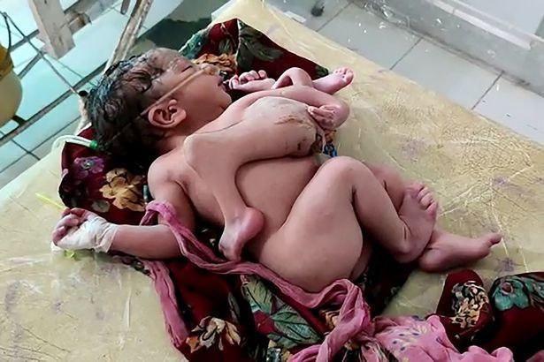 【神の化身】インドで生まれた結合双生児、4本の腕と3本の足を持って生まれてくる!!(画像)・1枚目