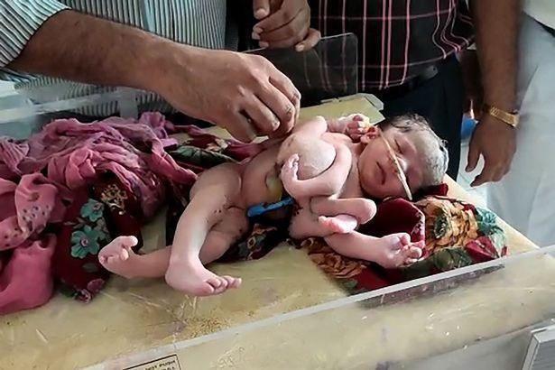【神の化身】インドで生まれた結合双生児、4本の腕と3本の足を持って生まれてくる!!(画像)・4枚目