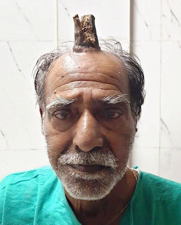 【ユニコーン爺】その辺に頭をぶつけたインドのお爺ちゃん、ぶつけた箇所から角を生やしてしまう!!(画像)・1枚目