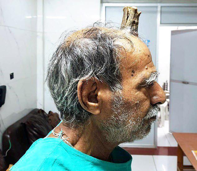 【ユニコーン爺】その辺に頭をぶつけたインドのお爺ちゃん、ぶつけた箇所から角を生やしてしまう!!(画像)・2枚目