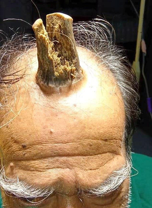 【ユニコーン爺】その辺に頭をぶつけたインドのお爺ちゃん、ぶつけた箇所から角を生やしてしまう!!(画像)・3枚目