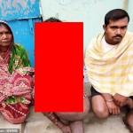 【閲覧注意】神経線維腫症という難病に侵されたインド人男性、ヤバ過ぎだろ・・・・・(画像)