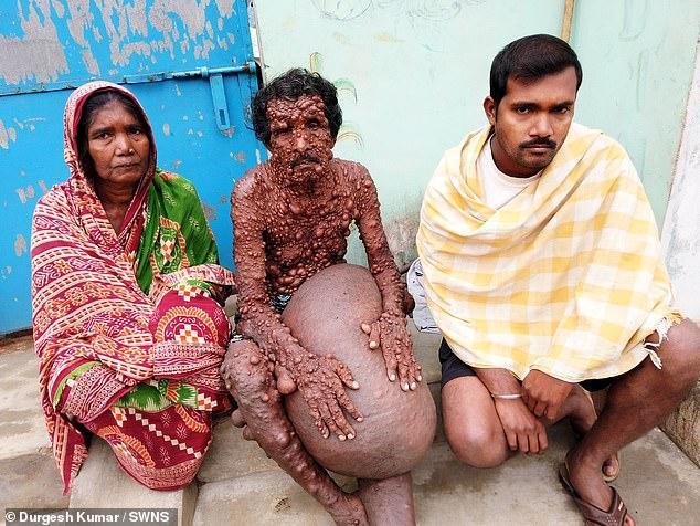 【閲覧注意】神経線維腫症という難病に侵されたインド人男性、ヤバ過ぎだろ・・・・・(画像)・1枚目