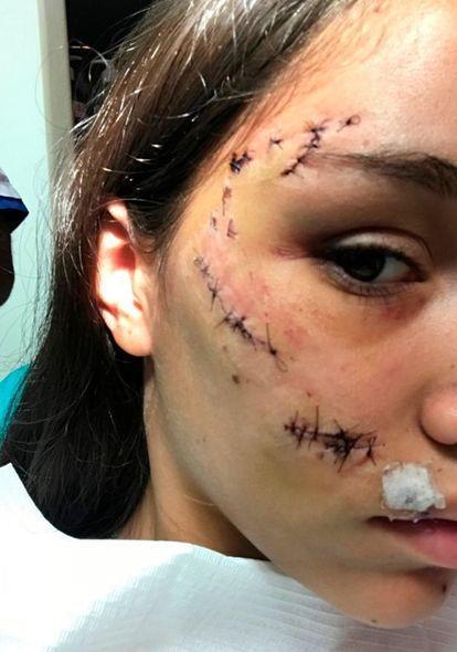 【怖すぎ】愛犬と写真撮影してたアルゼンチン美女さん、突如噛まれて顔面がえらい事になる!!(画像)・3枚目