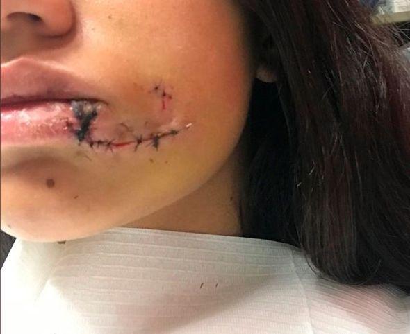 【怖すぎ】愛犬と写真撮影してたアルゼンチン美女さん、突如噛まれて顔面がえらい事になる!!(画像)・4枚目