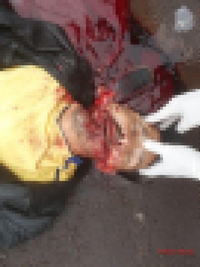 【グロ注意】斧で頭をフルスイングされた男性、頭が真っ二つになる・・・・・(画像)・3枚目