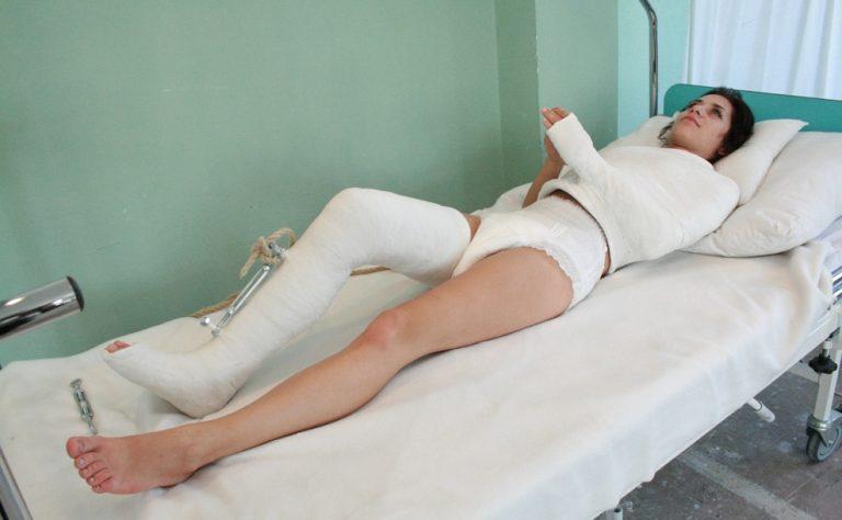【超マニアック】理解不能、骨折フェチニキの為のギブスガチガチなエロ画像(画像あり)・12枚目